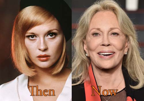 Faye Dunaway Before And After Plastic Surgery Eyes 1