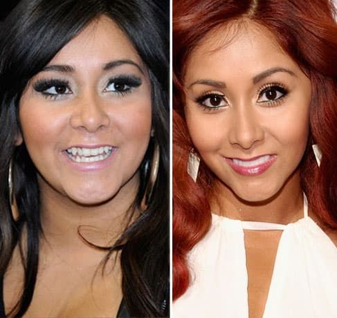 Jersey Shore Cast Before And After Plastic Surgery 1