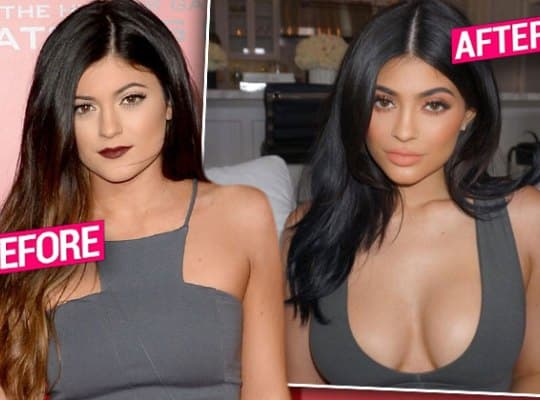 Kylie Jenner Body Before And After Plastic Surgery 1