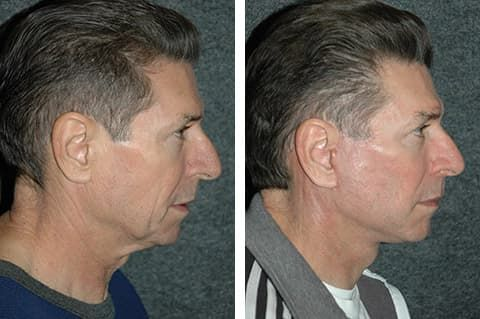 Plastic Surgery For Men Neck Lift Before And After 1