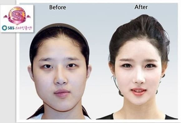 Real South Korean Plastic Surgery Before And After 1