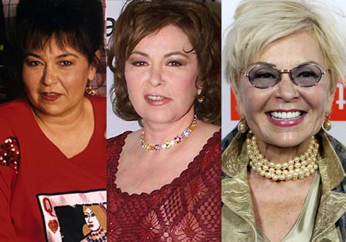 Rosanne Barr Before And After Plastic Surgery Pics 1