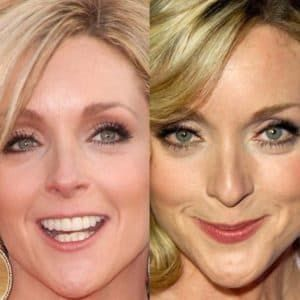 Weight Loss Plastic Surgery Before After 0 1