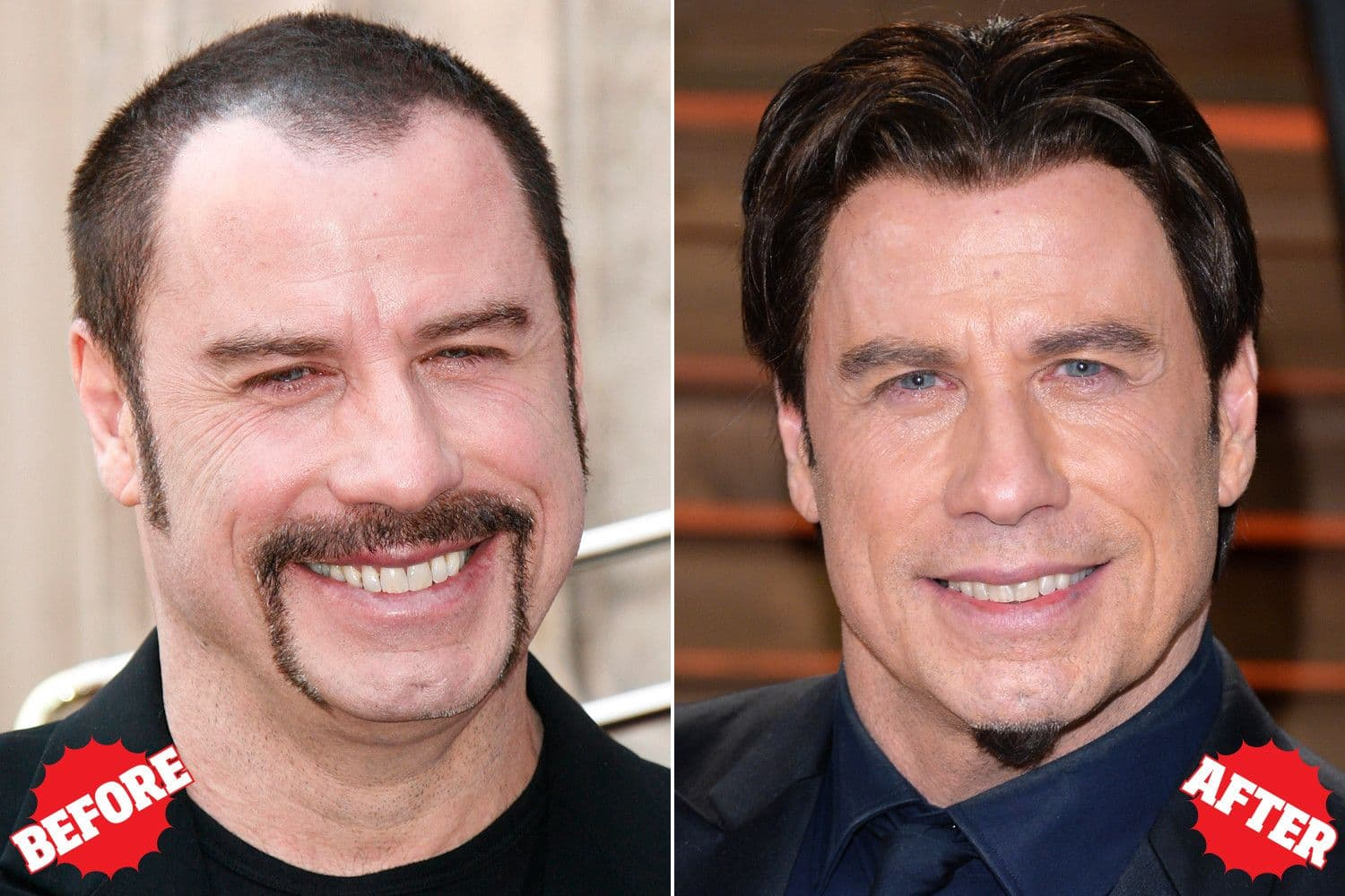 Before And After Plastic Surgery Male Celebrities 1