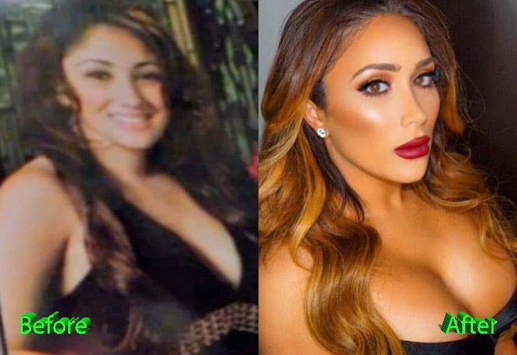 Who Is Nikki Baby Before And After Plastic Surgery 1