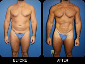 Before And After Buttock Augmentation Plastic Surgery photo - 1