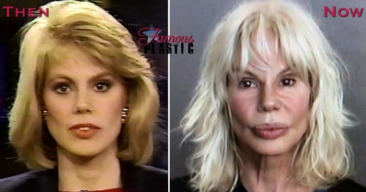 Celebrity Plastic Surgery Gone Wrong Before And After photo - 1