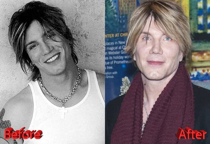 Goo Goo Dolls Singer Plastic Surgery Before And After photo - 1