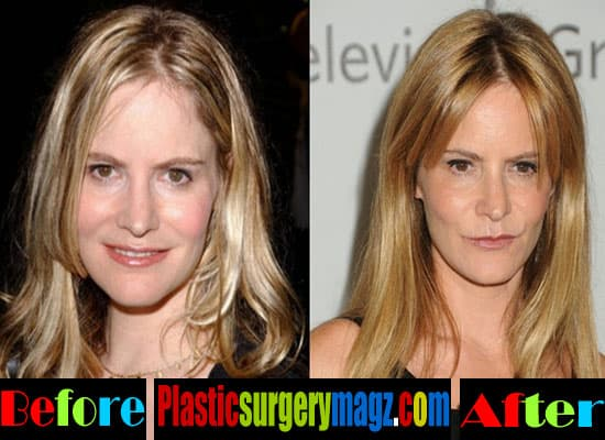 Jennifer Jason Leigh Plastic Surgery Before And After photo - 1