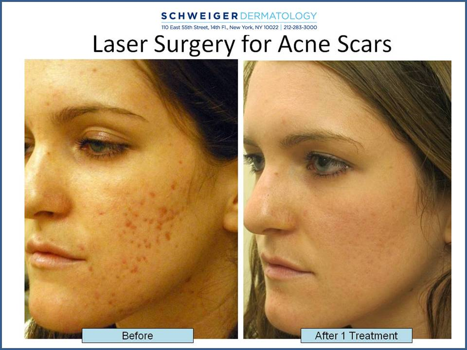 Plastic Surgery To Remove Acne Scars Before And After photo - 1