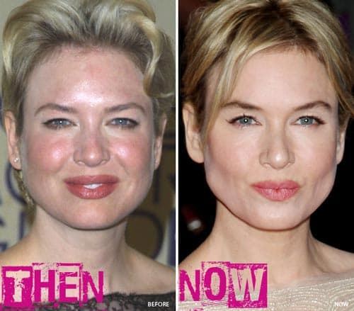 Renee Zellweger Before And After Plastic Surgery 2013 photo - 1