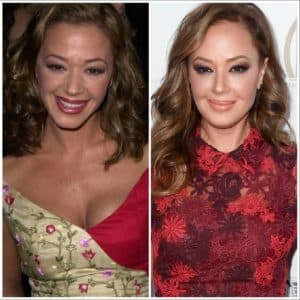 Bad Plastic Surgery Photos Before And After 1