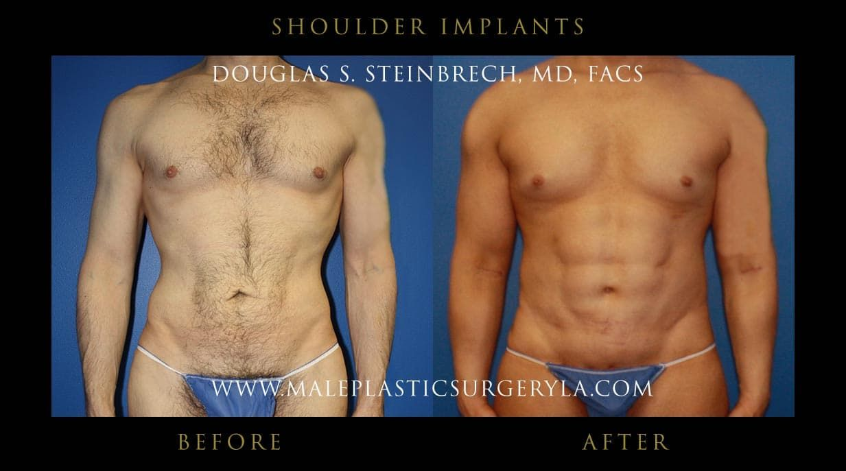 Plastic Surgery Penile Enlargement Before And After 1