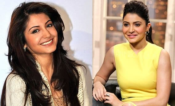 Indian Celebrities Before And After Plastic Surgery 1