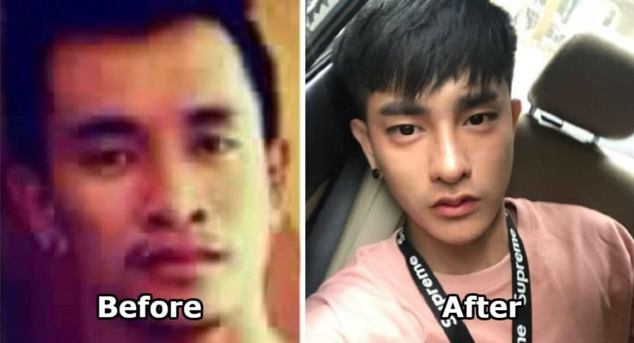 Korean Celebrities Before And After Plastic Surgery 1