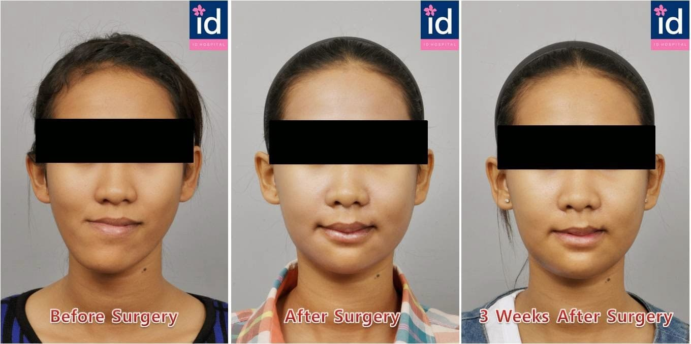 Plastic Surgery Before And After Korean Celebrities 1