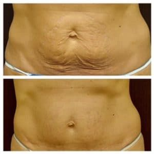 Plastic Surgery Before And After Tummy Tuck 1