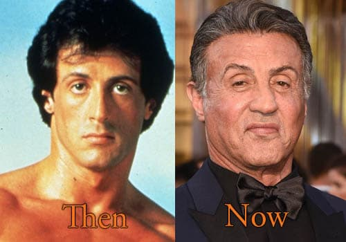 Sylvester Stallone Before And After Plastic Surgery 1