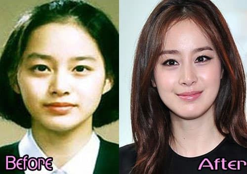 Before And After Plastic Surgery Korean Celebrities 1