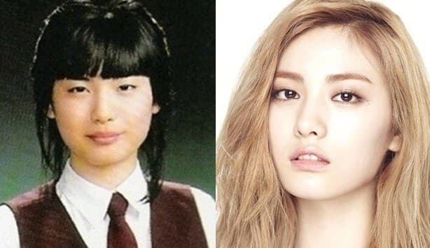Nana Korean Singer Before And After Plastic Surgery 1