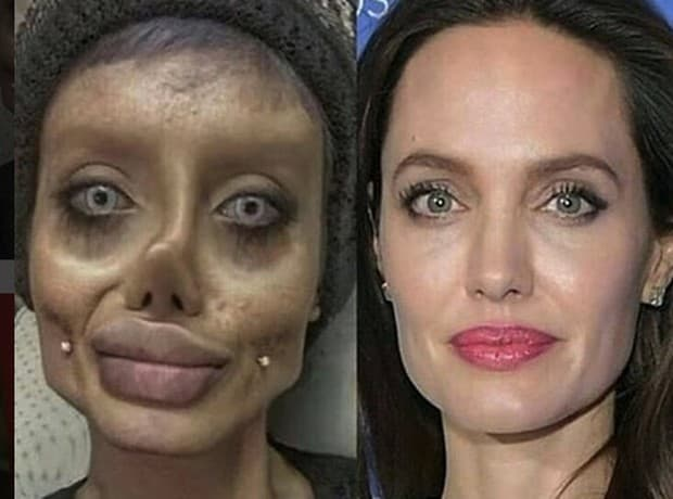 Bad Angelina Jolie Plastic Surgery Before And After 1