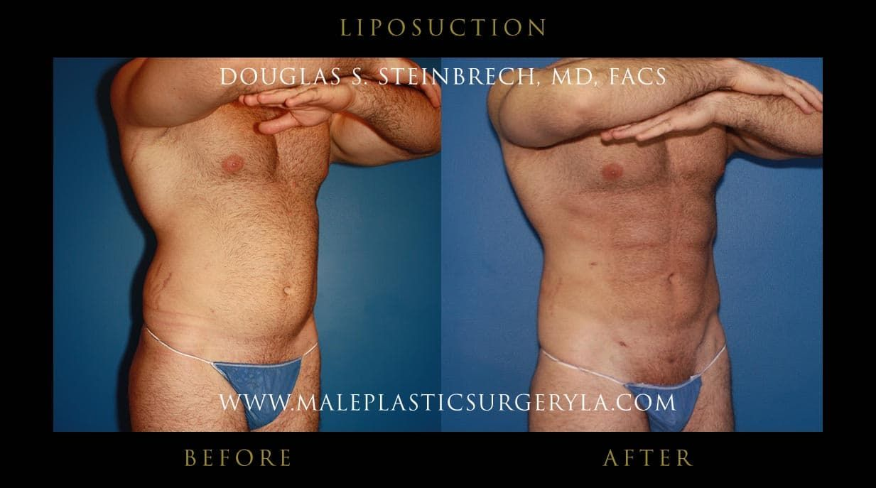 Before And After Photos Plastic Surgery Los Angeles 1