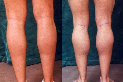 Big Surgery On Leg Before And After Plastic Surgery 1
