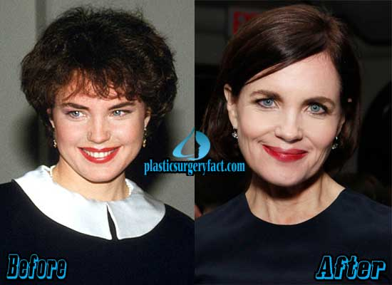 Elizabeth Mcgovern Before And After Plastic Surgery 1