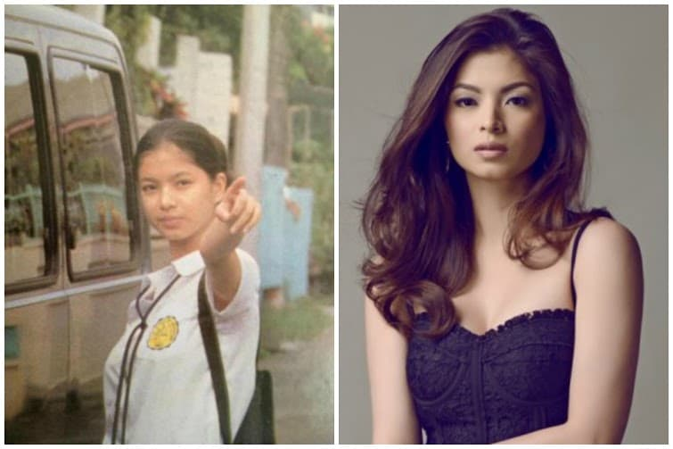 Filipino Actresses Before And After Plastic Surgery 1