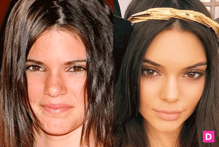 Kendal Kardashian Plastic Surgery Before And After 1