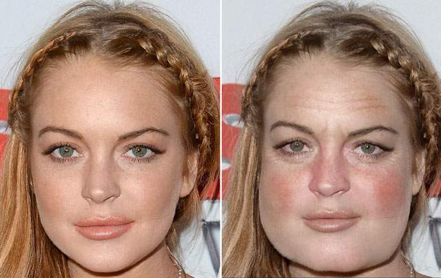 Lindsay Lohan Before And After Plastic Surgery 2013 1
