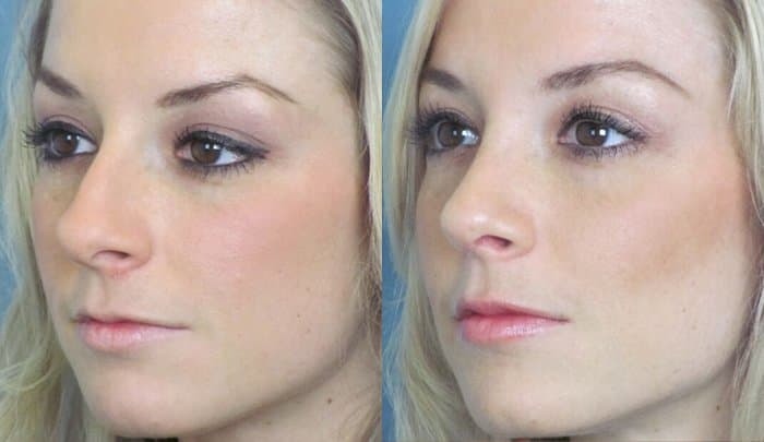 Plastic Surgery Before And After Photo Instructions 1