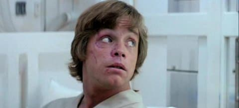 Young Mark Hamil Before Plastic Surgery Car Accident 1