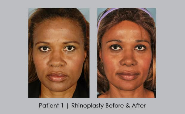 Best African American Plastic Surgery Before And After photo - 1