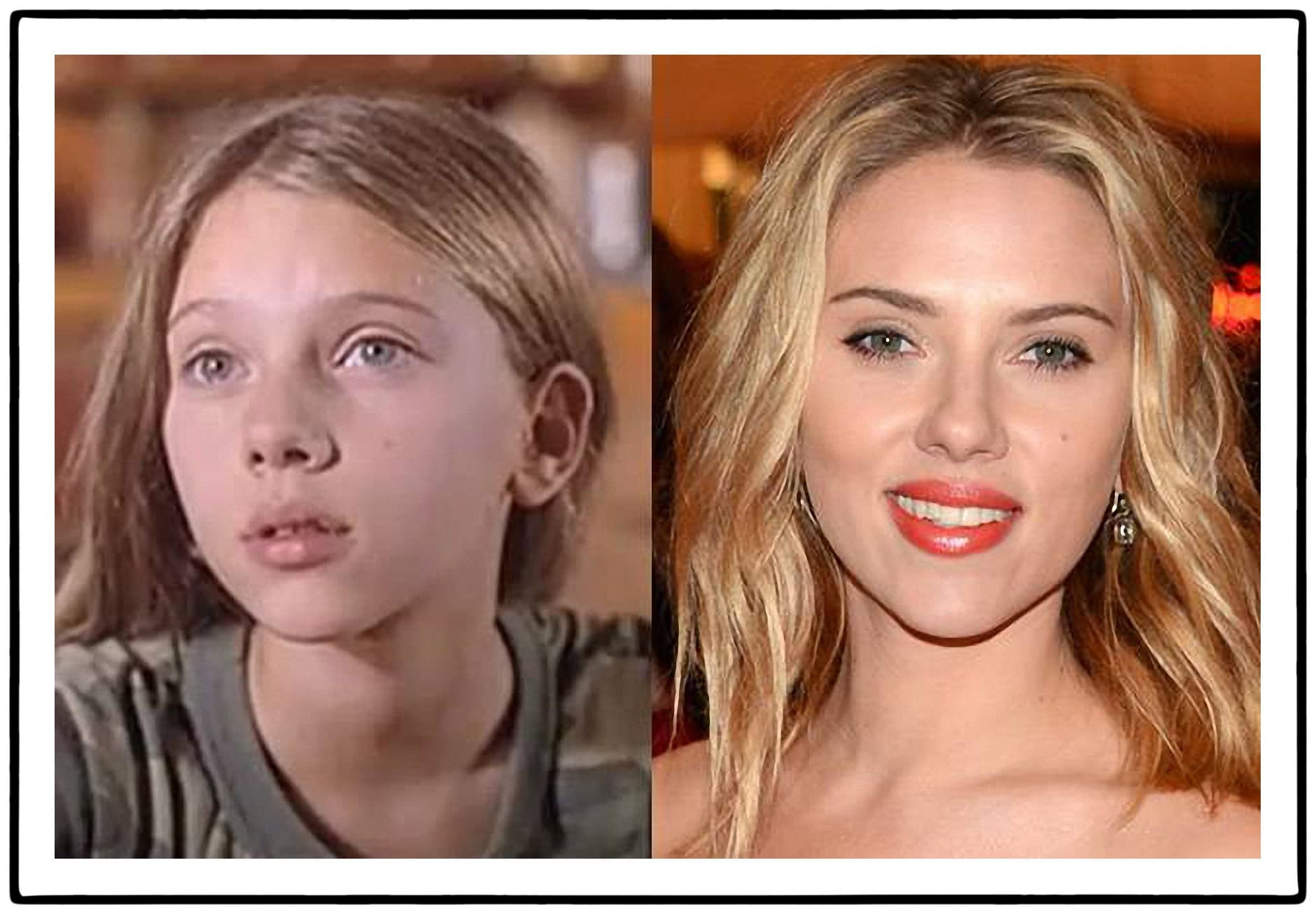 Scarlett Johansson Before And After Plastic Surgery 1