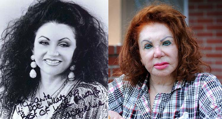 Celebrity Before And After Plastic Surgery Disasters 1