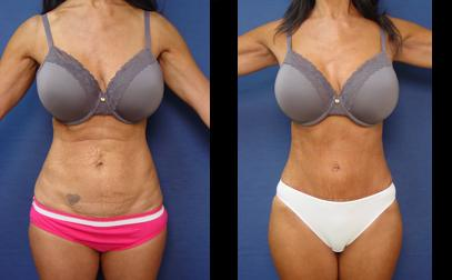 Plastic Surgery Before And After Pictures Tummy Tuck 1