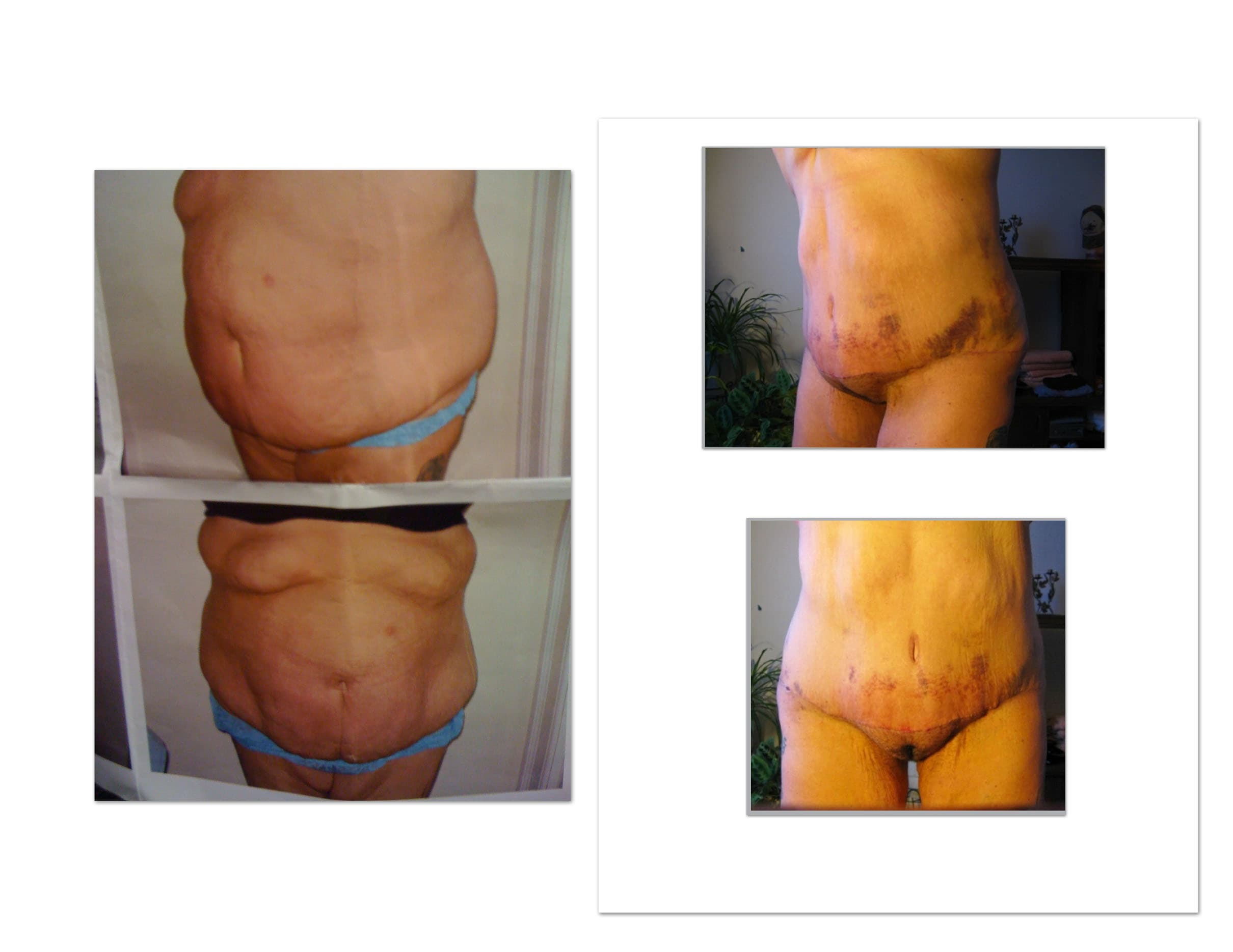 Plastic Surgery Penile Enhancement Before And After 1