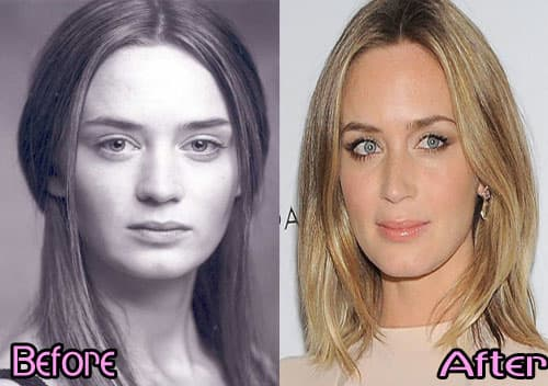 Hollywood Actresses Before And After Plastic Surgery 1