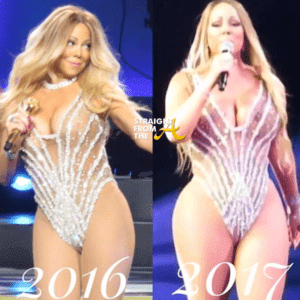 Plastic Surgery Before And After Weight Loss 1