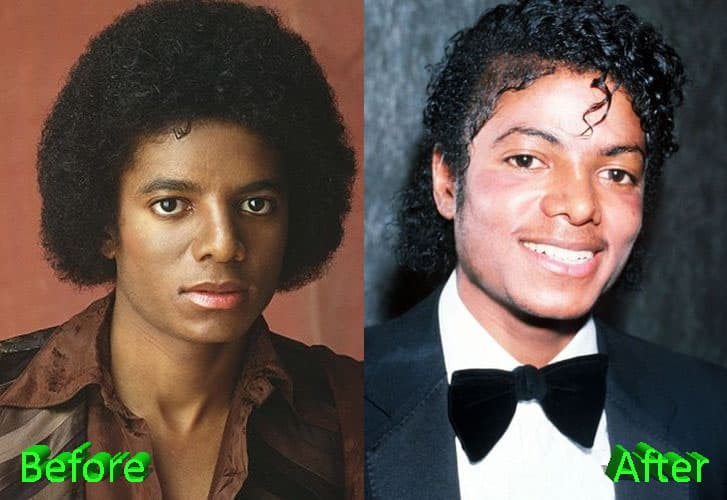 Michael Jackson Looked Better Before Plastic Surgery 1