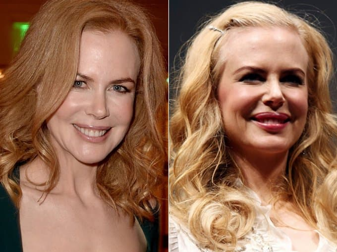 Nicole Kidman Plastic Surgery Before Breast Implants 1