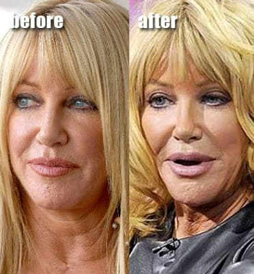 Before And After Plastic Surgery For Suzanne Sommers 1