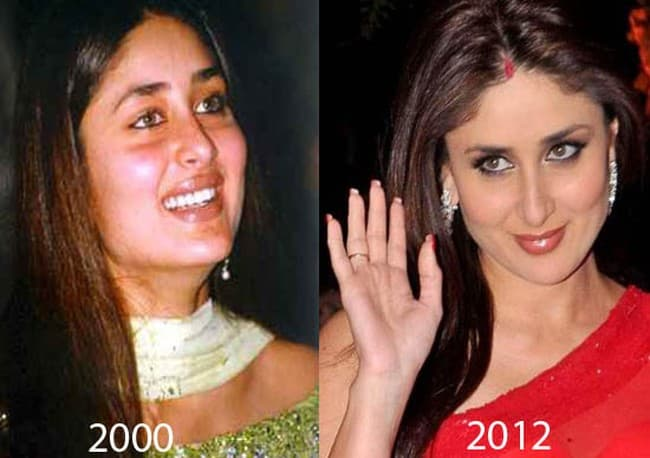 Bollywood Actresses Before And After Plastic Surgery 1