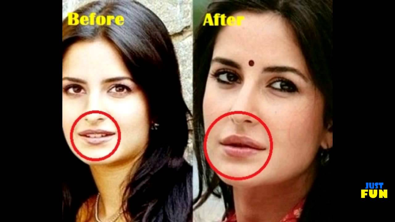 Bollywood Pics Of Celebrities Before Plastic Surgery 1