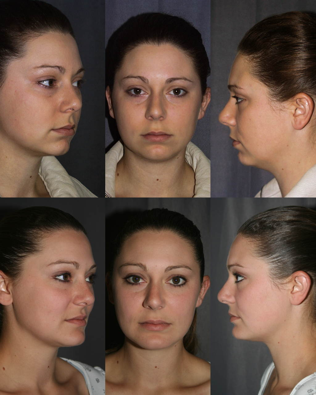 California Plastic Surgery Fillers Before And After 1