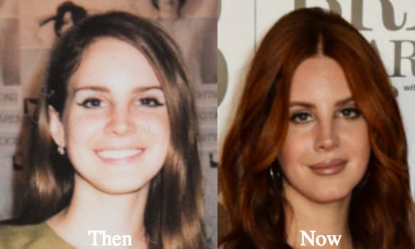Lana Del Rey Plastic Surgery Before And After Photos 1