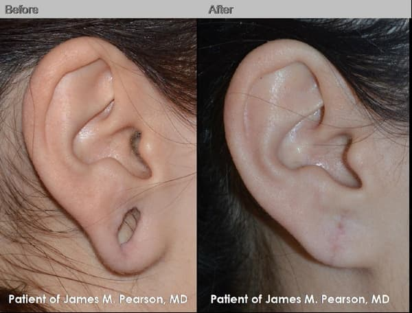Plastic Surgery For Gauged Earlobes Before And After 1