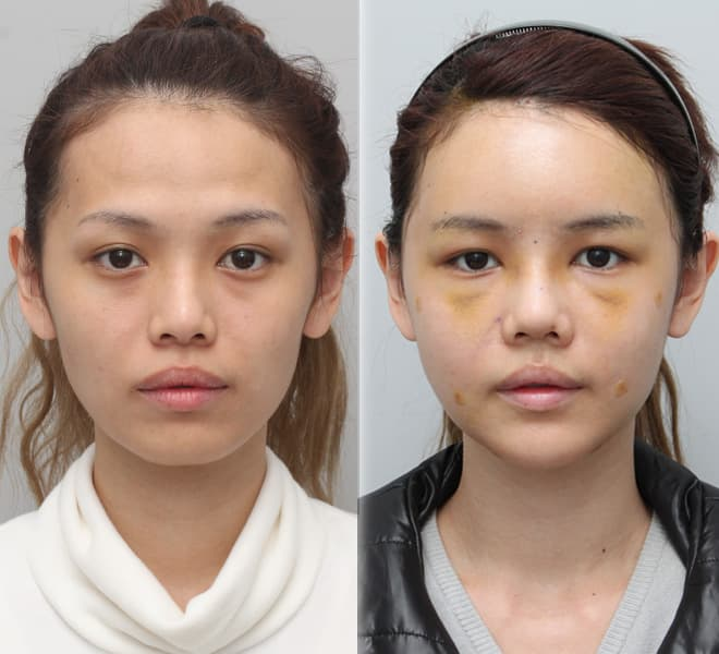 How Long Before Plastic Surgery Stitches Are Removed 1