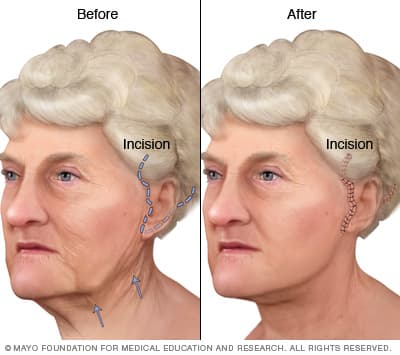 Plastic Surgery On Jowls And Neck Before After Pictures photo - 1